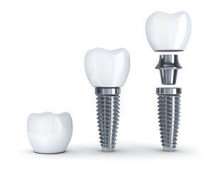 Representation of dental implant parts