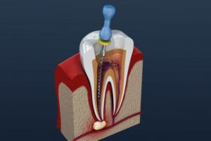 rendering of a root canal