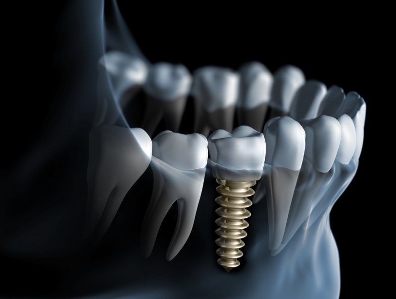 a mouth with a dental implant